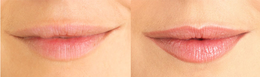 Cosmetic Tattooing Permanent Makeup Lips Micropigmentation Lip