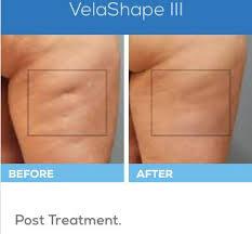 Contouring Amp Cellulite Velashape Iii